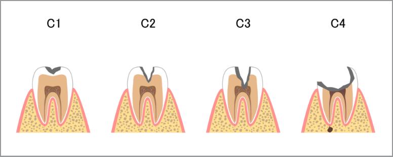 虫歯になる過程