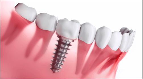 インプラント・入れ歯